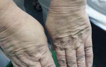 Albumul Străduinței. Cum arată mâinile angajaților din sistemul sanitar care se luptă cu COVID-19