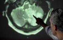 Ce efecte poate avea COVID-19 asupra creierului: Accident vascular cerebral, delir, anxietate, confuzie, oboseală